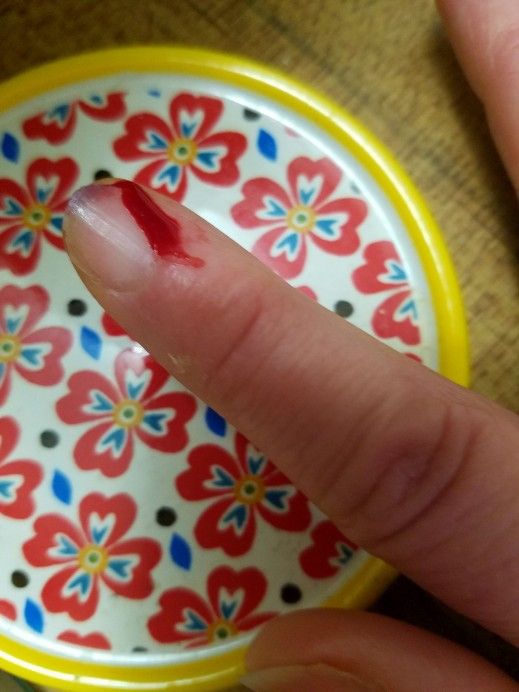 Pricked finger